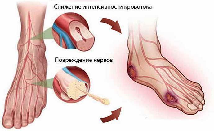 микроангиопатия головного мозга диабетическая