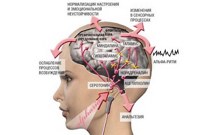 микрополяризация головного мозга результаты