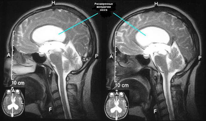 патологии головы на МРТ