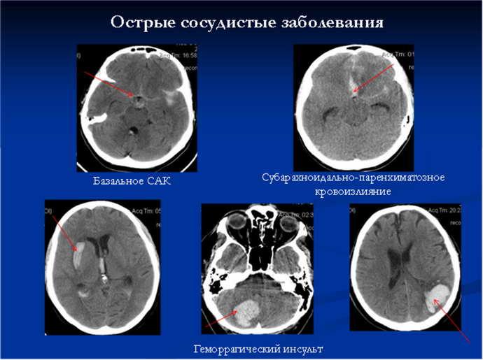 МРТ сосудистых патологий мозга
