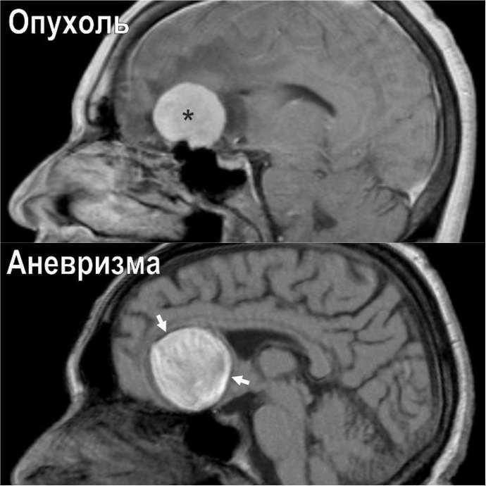 Диагностика опухолей мозга на мрт