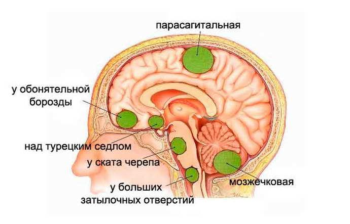 мрт головного мозга с контрастом показания