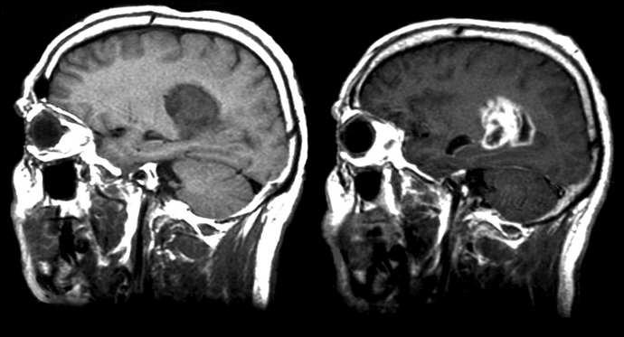 мрт головного мозга с контрастом что можно увидеть