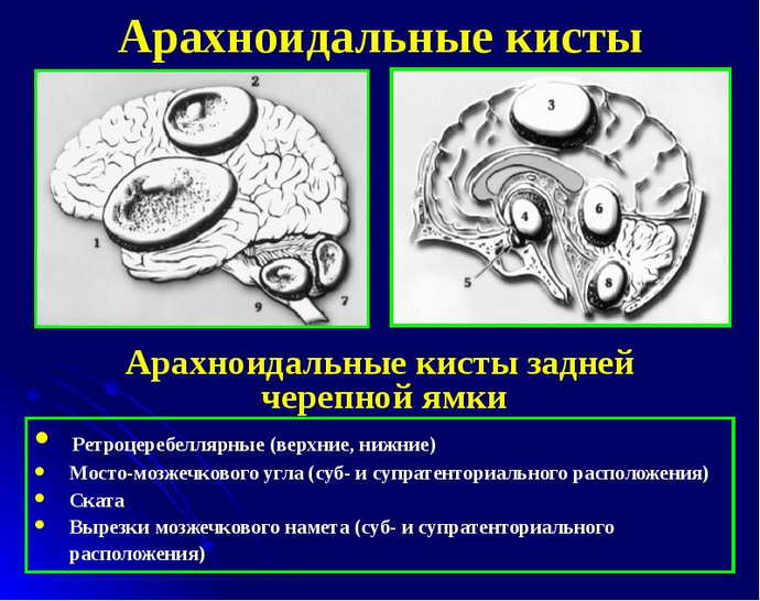 мультикистоз головного мозга виды