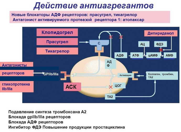 нарушение мозгового кровообращения при шейном остеохондрозе лекарства