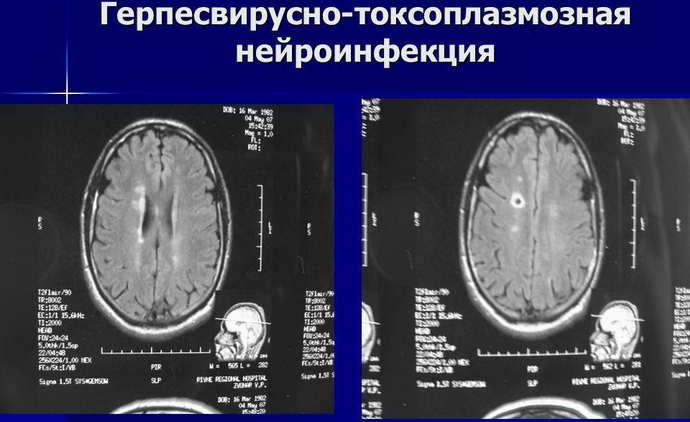 нейроинфекции виды