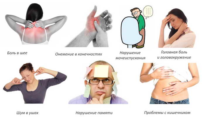 обострение шейного остеохондроза признаки