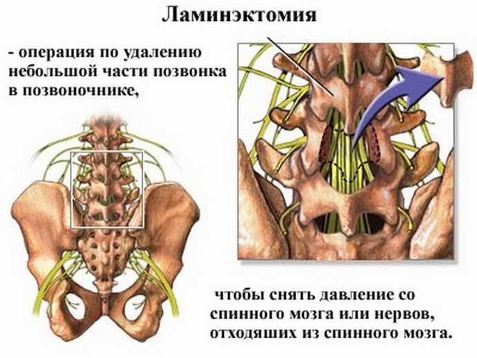 обострение шейного остеохондроза операция
