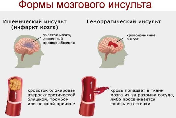 обширный инсульт формы