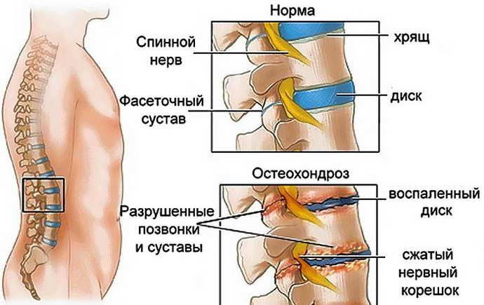 очаговые изменения вещества мозга дисциркуляторного характера симптоматика