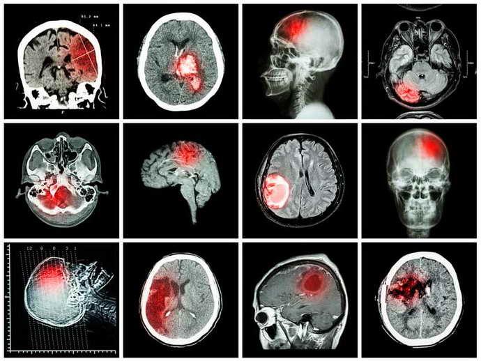 органическое поражение головного мозга диагностика