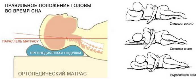 ортопедическая подушка при шейном остеохондрозе какая лучше