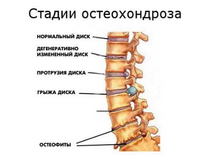 остеохондроз шейного отдела причины