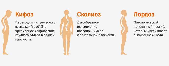 остеохондроз шейного отдела что это
