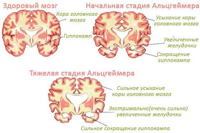 передается ли болезнь альцгеймера по наследству детям