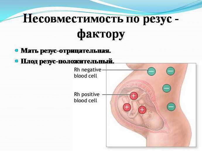 постгипоксическая энцефалопатия причины