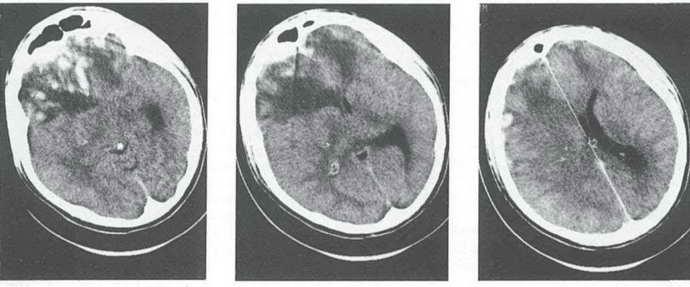 посттравматическая энцефалопатия степени тяжести