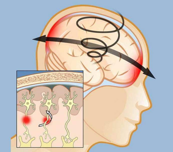посттравматическая энцефалопатия причины