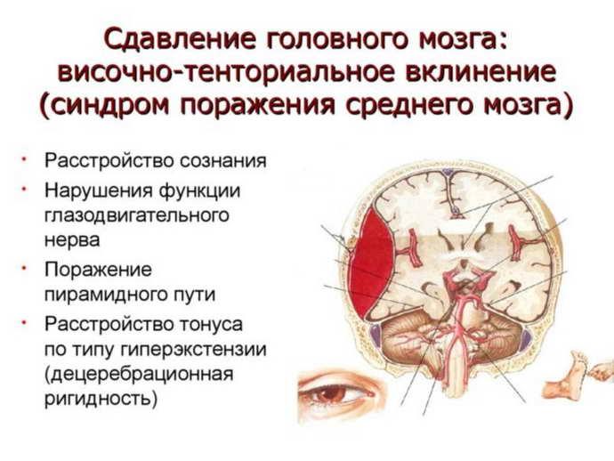 посттравматическая энцефалопатия когда проявляется