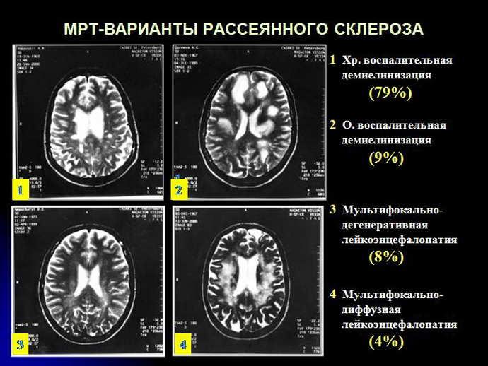 Как распознать рассеянный склероз на МРТ