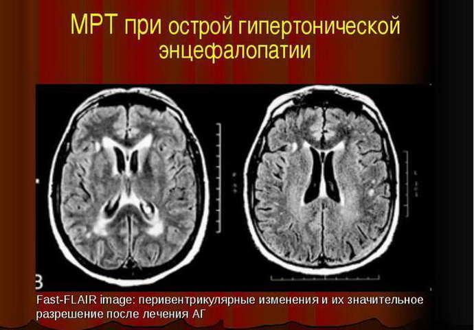 Рассеянный склероз и другие заболевания мозга на МРТ