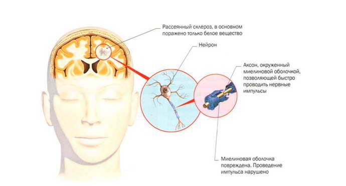 рассеянный склероз мрт симптомы