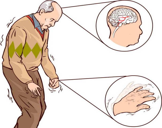 резидуальная энцефалопатия осложнения