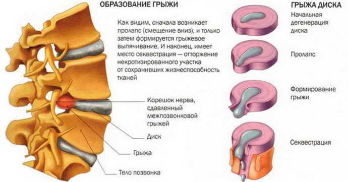 секвестрированная грыжа механизм развития