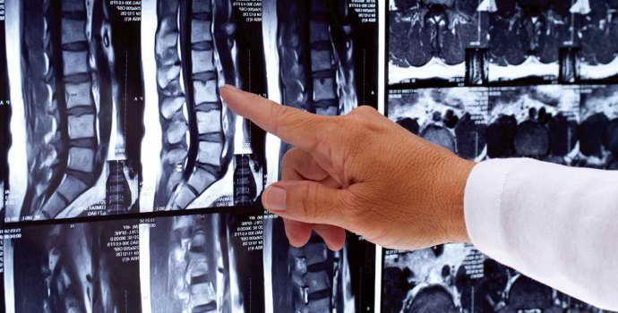 Секвестрированная грыжа позвоночника: причины, лечение и последствия
