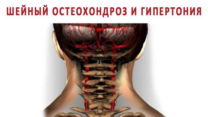 шейный остеохондроз и артериальное давление