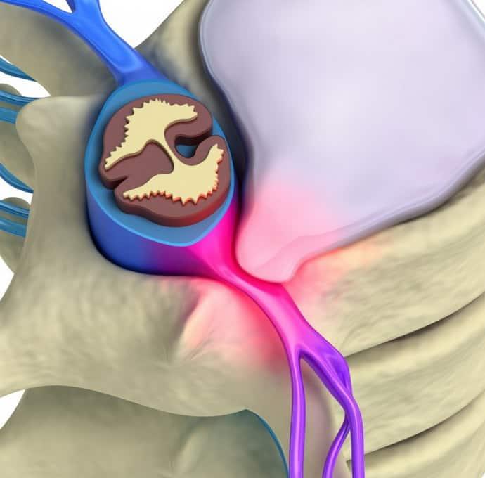 Болит спина при протрузии