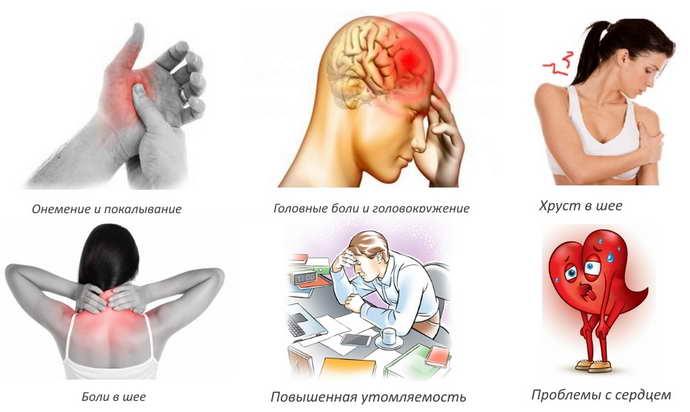 шейный остеохондроз у женщин симптомы