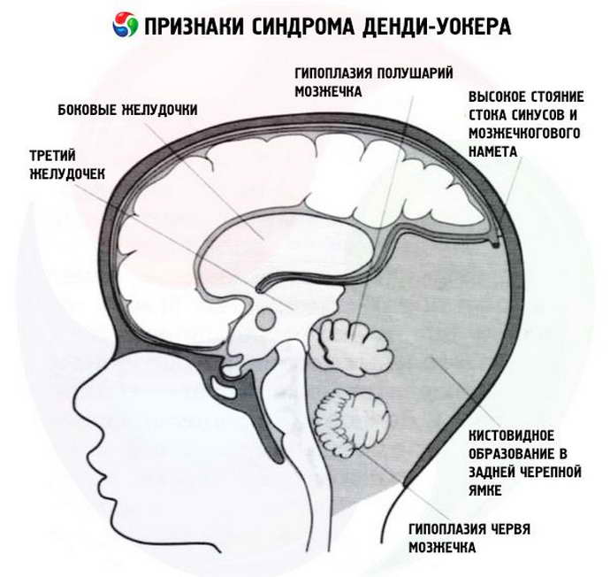 синдром денди уокера
