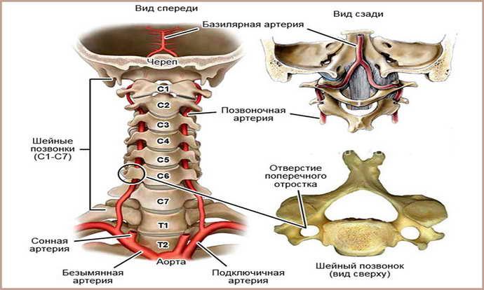 синдром позвоночной артерии при шейном остеохондрозе стадии