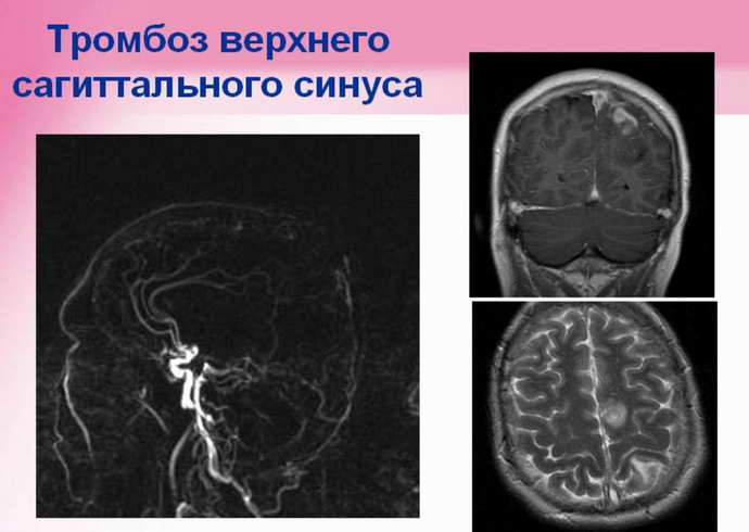 синус тромбоз симптомы