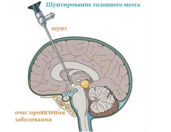 смешанная гидроцефалия шунтирование