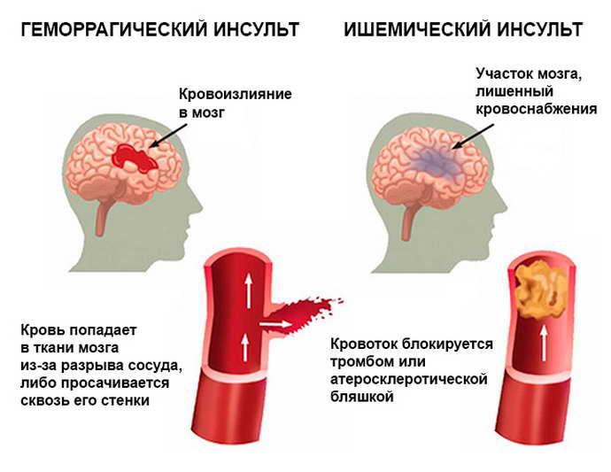 стволовой инсульт виды