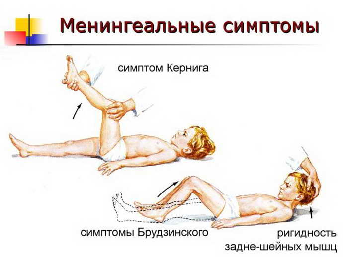 субдуральная гематома признаки