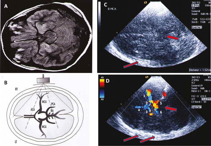 транскраниальная допплерография сосудов головного мозга расшифровка