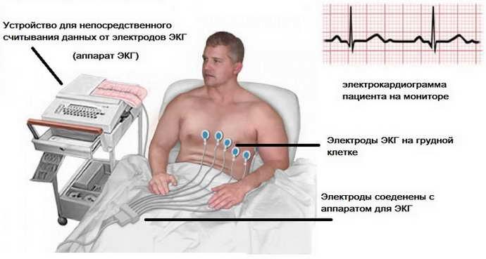 церебральная ангиодистония диагностика