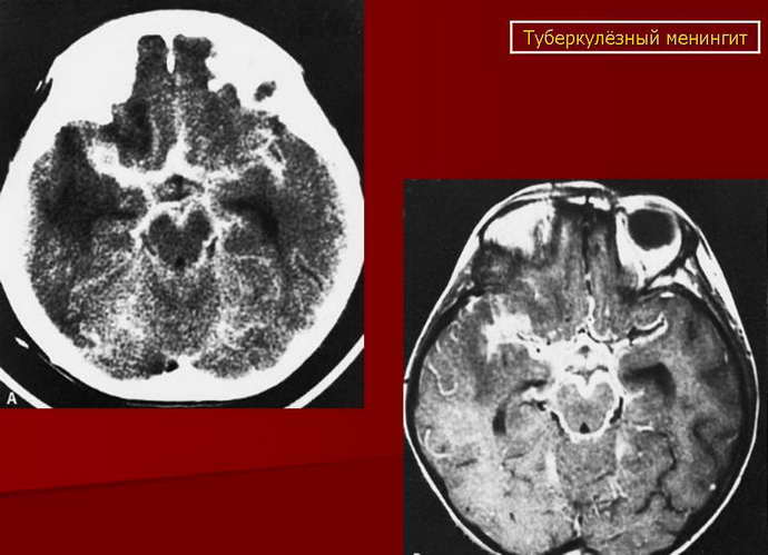 туберкулезный менингит характеристика