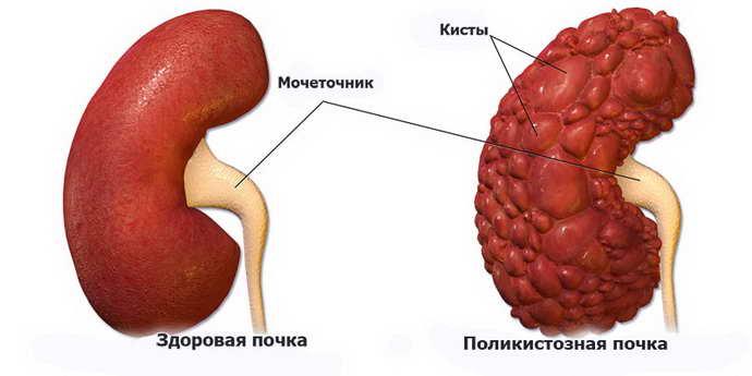 туберозный склероз симптоматика