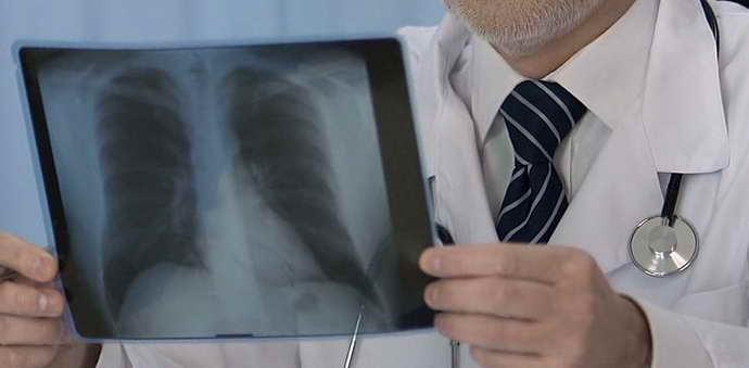 туберозный склероз диагностика