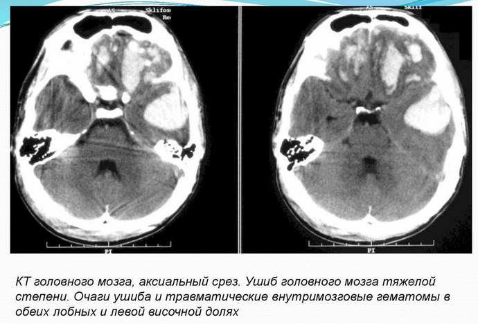 ушиб головного мозга мрт