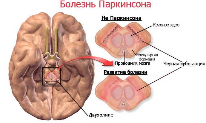 как определить сотрясение мозга что провоцирует