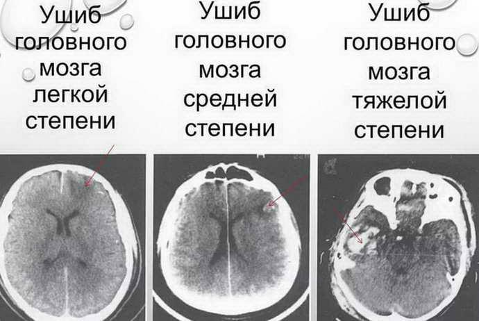 как определить сотрясение мозга степени