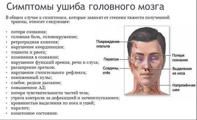 ушиб головного мозга симптомы