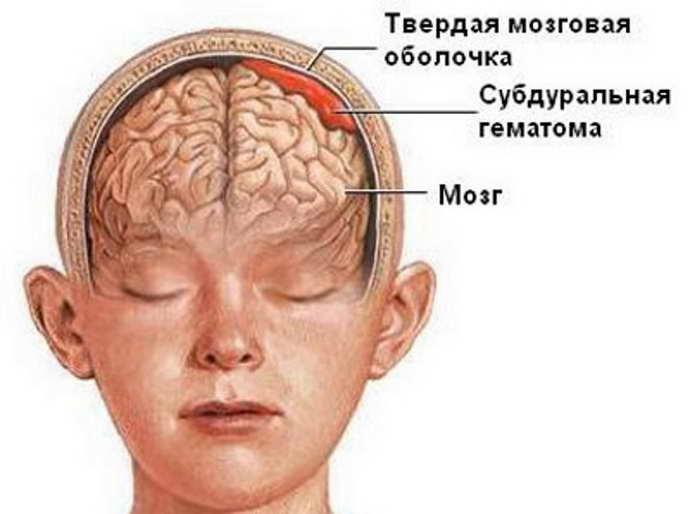 ушиб головного мозга что это