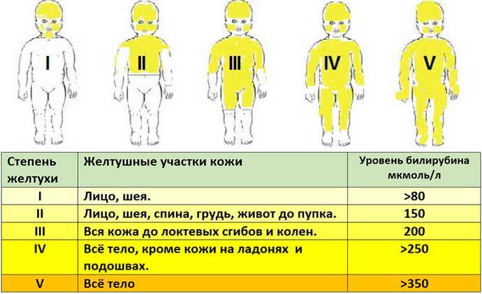ядерная желтуха причины