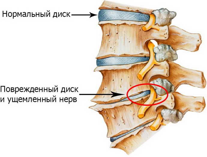 защемление нерва в грудном отделе причины